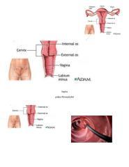 anatomia-patologica-vagina-y-cuello-uterino (1).docx